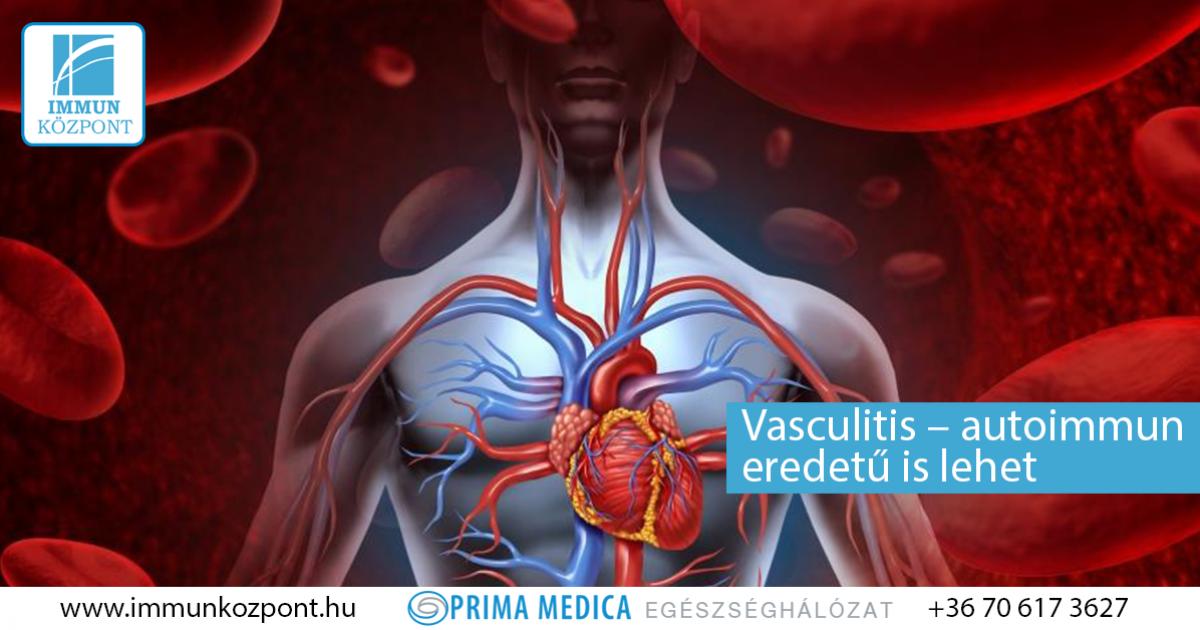 magas vérnyomás és vasculitis magas vérnyomás a klinikán