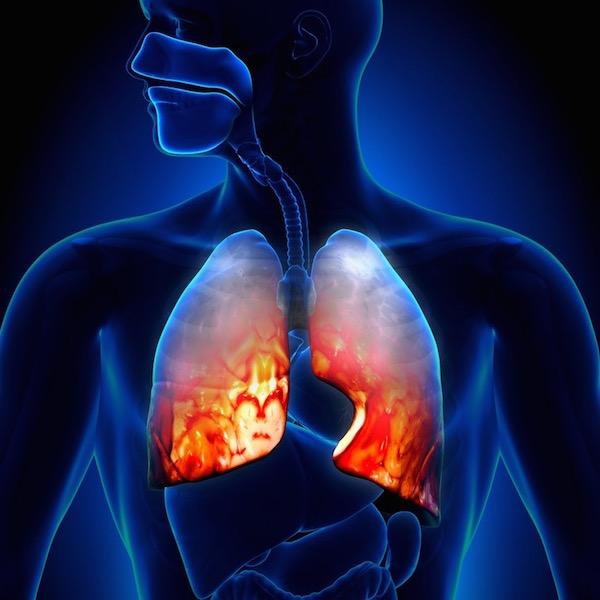 magas vérnyomás tüdőgyulladás)