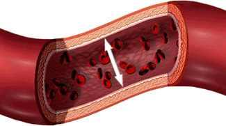 mi gyakorolja a magas vérnyomás nyomásától