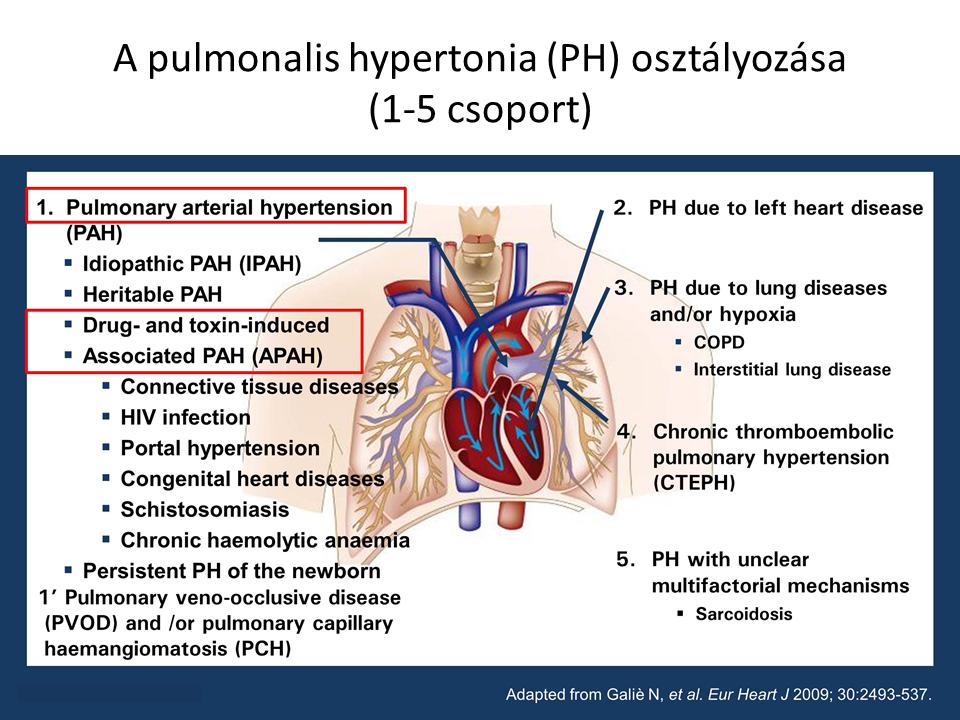 pulmonális hipertónia)