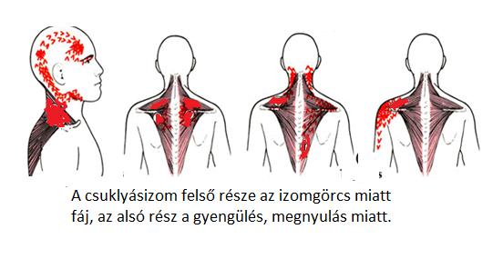 A nyakfájás