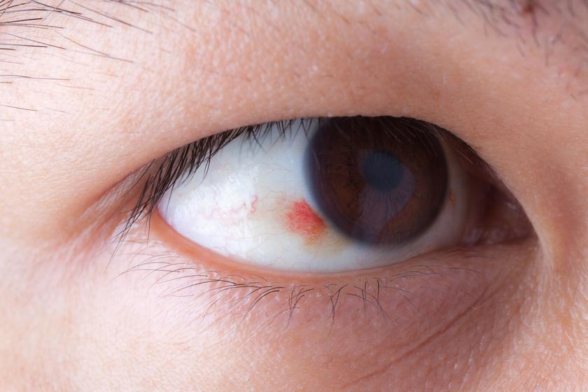 Magas vérnyomású szemerekkel. A legkorábban a szemfenéki erek elváltozása látható