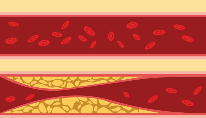 a magas vérnyomás kezelésének gyakorisága