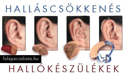 fülzúgás okai a magas vérnyomás miatt)