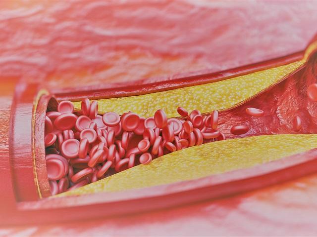magas vérnyomás okainak és tüneteinek kezelése)