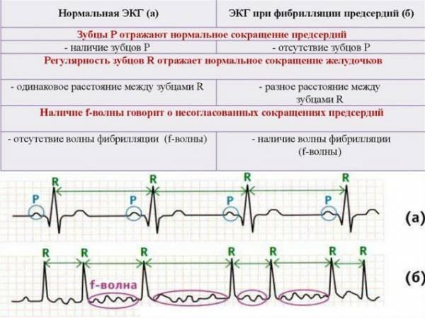 az ecg dekódolása magas vérnyomás esetén)