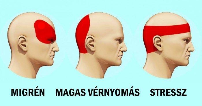 fej nélküli magas vérnyomás mi ez)