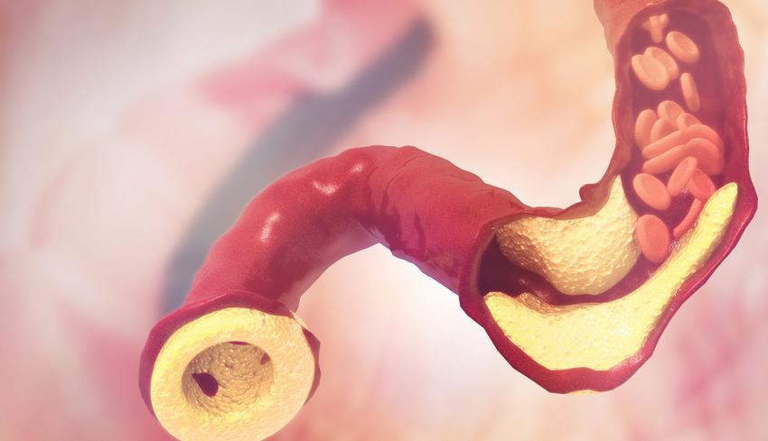 hogyan lehet csökkenteni a koleszterinszintet magas vérnyomás esetén)