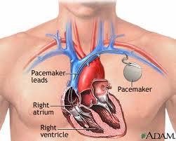 magas vérnyomás és pacemaker)