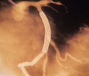 A sztent-beültetés nem enyhíti a mellkasi fájdalmat