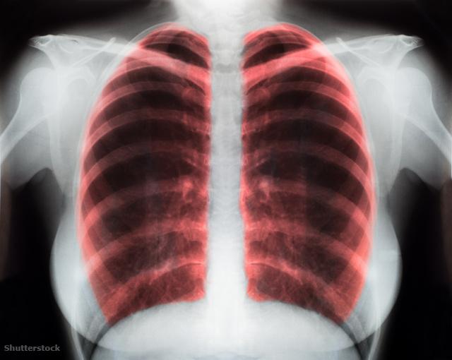 magas vérnyomás a tüdőből)