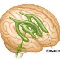 Az idiopathiás intracranialis hipertenzió korszerű diagnózisa és kezelése | eLitMed