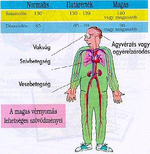 hipertónia szövődménye