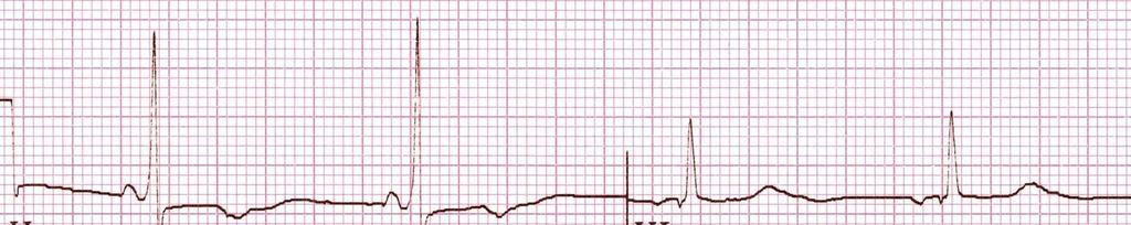 hogyan lehet gyógyítani az aritmia hipertóniáját