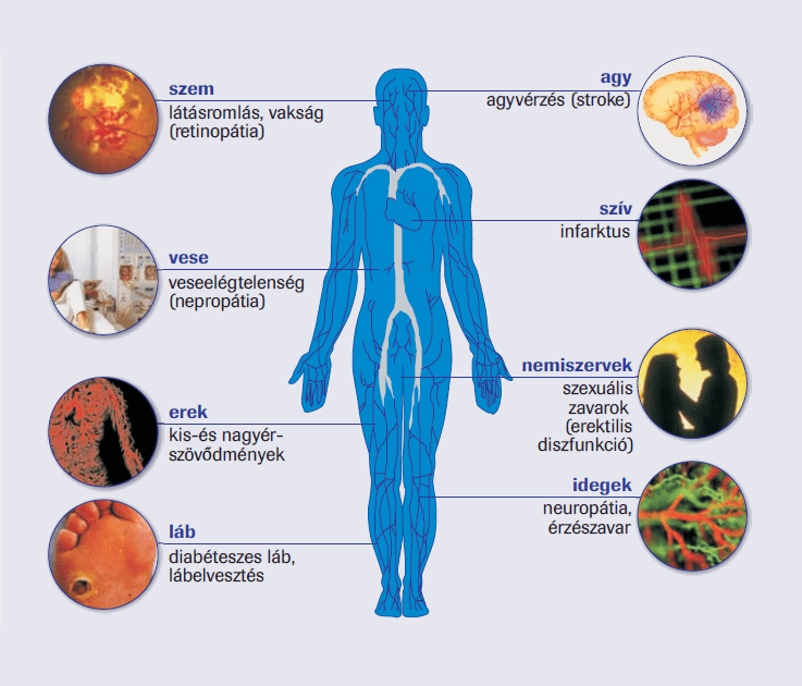 magas vérnyomás cukorbetegeknél 1