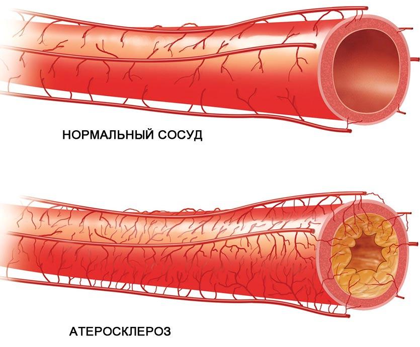 ENAP 1,25 mg/ml oldatos injekció - Gyógyszerkereső - Hárockwellklub.hu