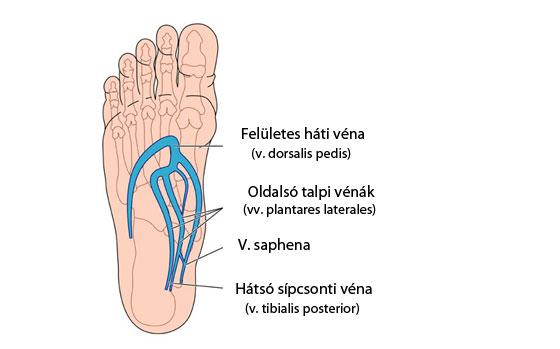 magas vérnyomás és a lábak vénái