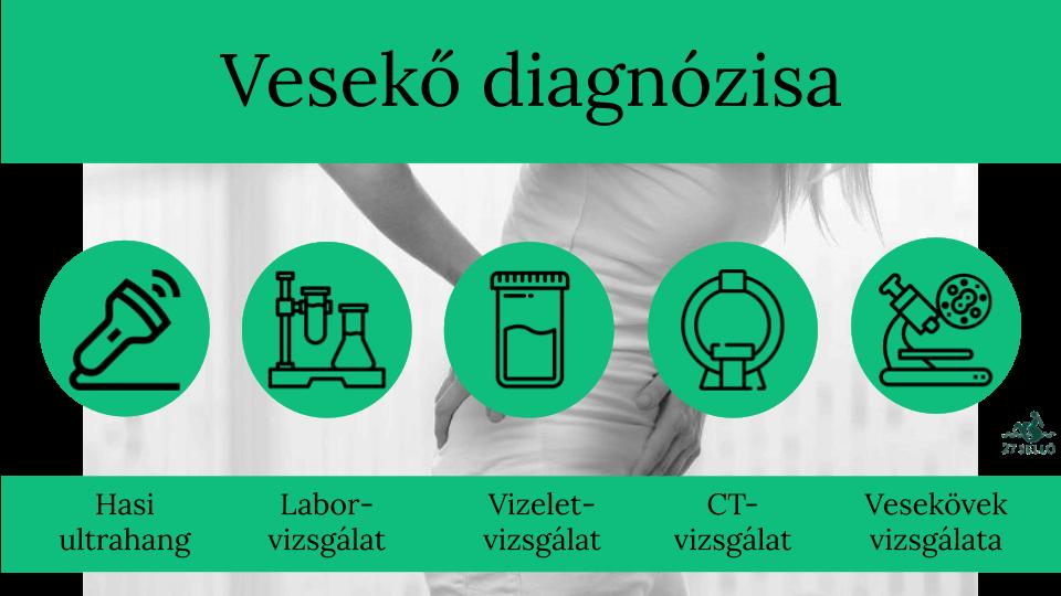 vesekő és magas vérnyomás)